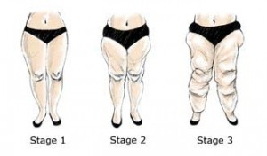 lipedema-stage-1-to-3